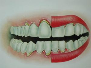 牙龈萎缩的治疗_牙龈萎缩怎么治疗